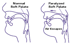 softpalate1
